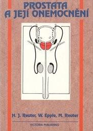 Prostata a její onemocnění